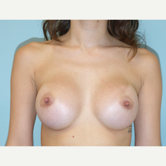 25-34 year old woman treated with Breast Augmentation after 3595800