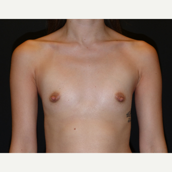25-34 year old woman treated with Breast Augmentation before 3595800