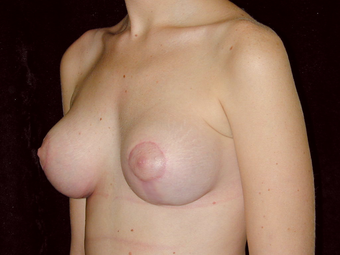 Breast Lift with Silicone Breast Implants after 1050358