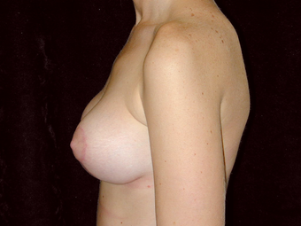 Breast Lift with Silicone Breast Implants 1050358