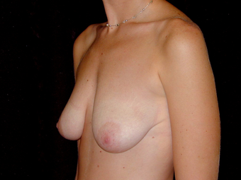 Breast Lift with Silicone Breast Implants before 1050358