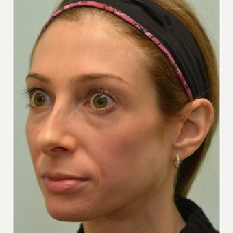 32 year old patient treated for mid face volume loss with Voluma before 1967391