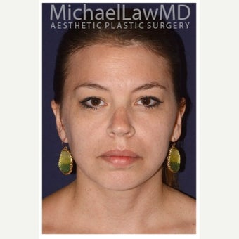 25-34 year old woman treated with Lower Face Lift