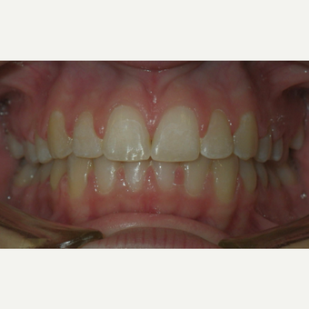 17 or under year old woman treated with Invisalign after 3658412