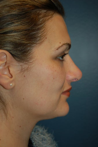 Revision Rhinoplasty after 925573