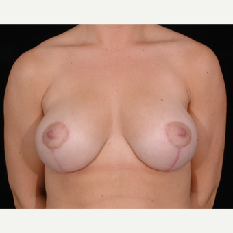 37 year old woman treated with Breast Lift with Implants after 3057672