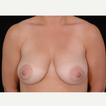 37 year old woman treated with Breast Lift with Implants before 3057672