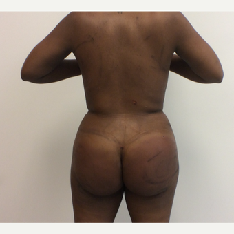 35-44 year old woman treated with Fat Transfer after 3590432
