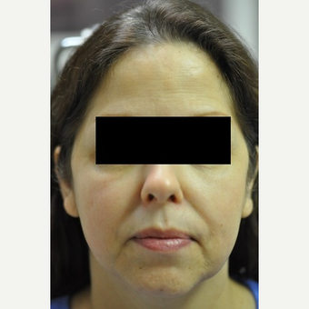 55-64 year old woman treated with TriPollar before 2699434