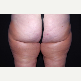 45-54 year old woman treated with Cellulaze after 3280722
