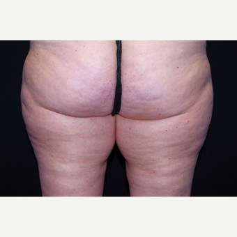 45-54 year old woman treated with Cellulaze before 3280722