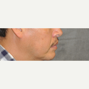 35-44 year old man treated with Lip Lift after 3175854