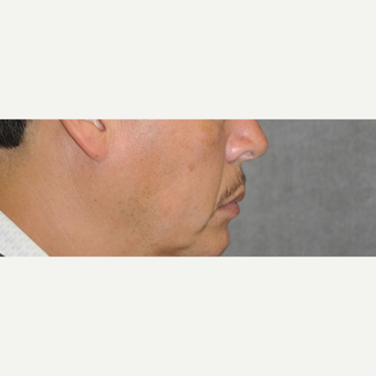 35-44 year old man treated with Lip Lift before 3175854