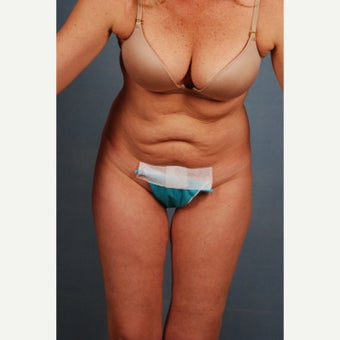 25-34 year old woman treated with Tummy Tuck 1648238