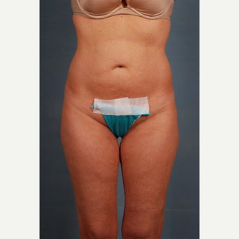 25-34 year old woman treated with Tummy Tuck before 1648238