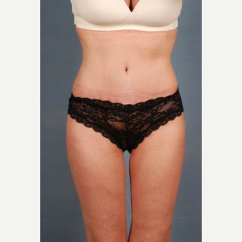 25-34 year old woman treated with Tummy Tuck after 1648238
