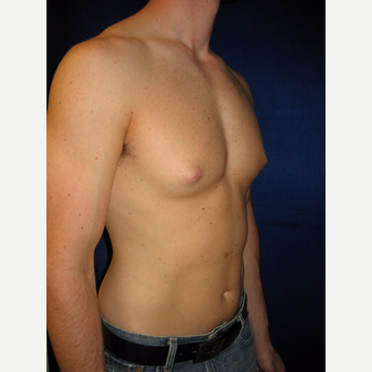 25-34 year old woman treated with Male Breast Reduction before 3765957