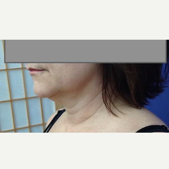 35-44 year old woman treated with Laser Liposuction before 3530295