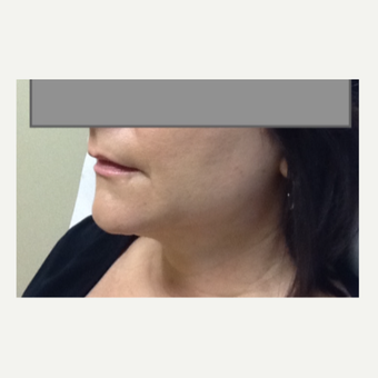35-44 year old woman treated with Laser Liposuction after 3530295