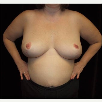 25-34 year old woman treated with Breast Reduction after 2611015