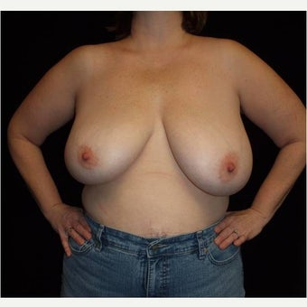 25-34 year old woman treated with Breast Reduction before 2611015