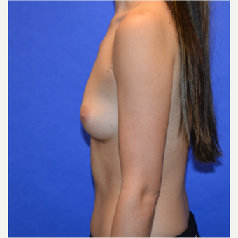 25-34 year old woman treated with Breast Augmentation before 3579904