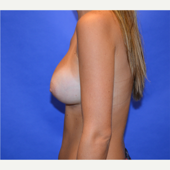 25-34 year old woman treated with Breast Augmentation after 3579904