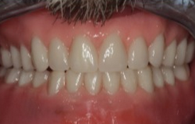 45-54 year old man treated with Dental Implants after 1992279
