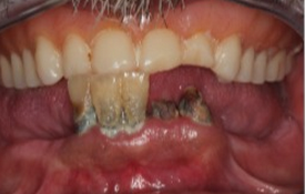 45-54 year old man treated with Dental Implants before 1992279