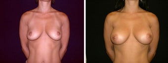39 year old female, breast augmentation, San Francisco, California before 628345