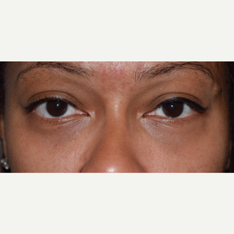 35-44 year old woman treated with Lower Eyelid Surgery after 3641654