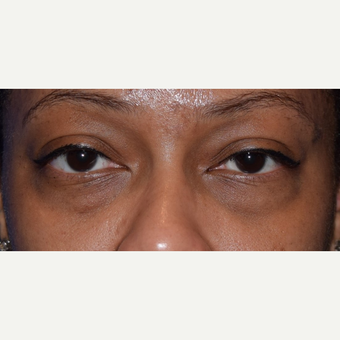 35-44 year old woman treated with Lower Eyelid Surgery before 3641654
