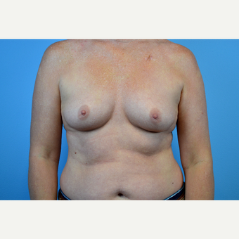 35-44 year old woman treated with Breast Implants before 3644237