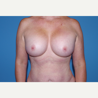 35-44 year old woman treated with Breast Implants after 3644237