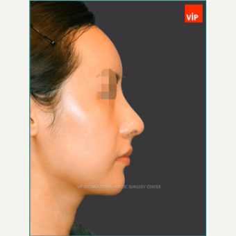 25-34 year old woman treated with No implant 100% natural Asian rhinoplasty