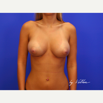 25-34 year old woman treated with Breast Implants after 3499702