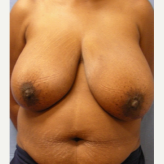 35-44 year old woman treated with Breast Reduction before 3630467