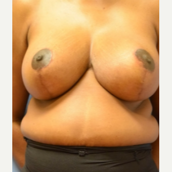 35-44 year old woman treated with Breast Reduction after 3630467