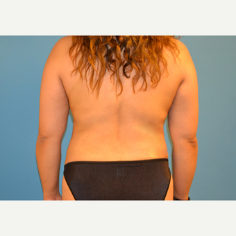35 year old woman treated with Tumescent Liposuction of back after 3088854
