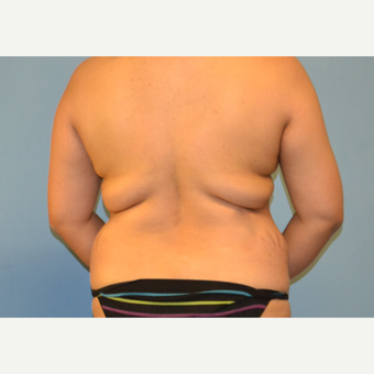 35 year old woman treated with Tumescent Liposuction of back before 3088854