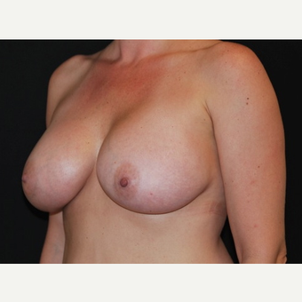 35-44 year old woman treated with Breast Implants after 3650978