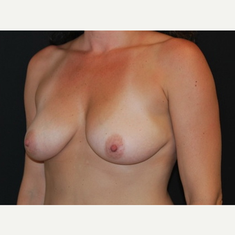 35-44 year old woman treated with Breast Implants before 3650978
