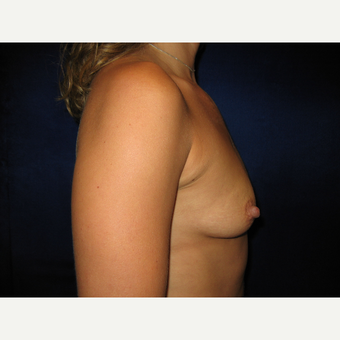25-34 year old woman treated with Breast Implants before 3765832