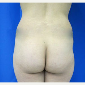 Liposuction before 3094202