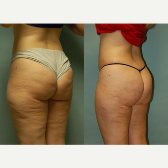 49 year-old woman 7 months post Cellulaze and Smartlipo of buttocks, posterior and lateral thighs after 3262013