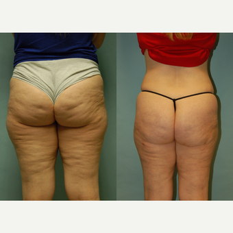 49 year-old woman 7 months post Cellulaze and Smartlipo of buttocks, posterior and lateral thighs before 3262013