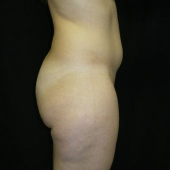 25-34 year old woman treated with Butt Augmentation 1536081