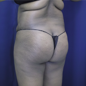 35-44 year old woman treated with Brazilian Butt Lift before 3305189