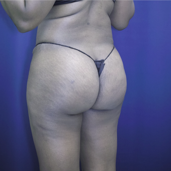 35-44 year old woman treated with Brazilian Butt Lift after 3305189