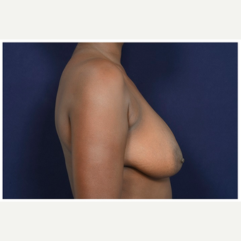 35-44 year old woman treated with Breast Lift before 3246081